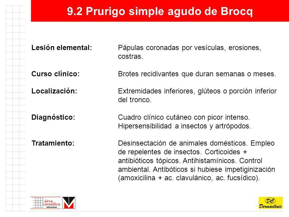 9.2 Prurigo simple agudo de Brocq