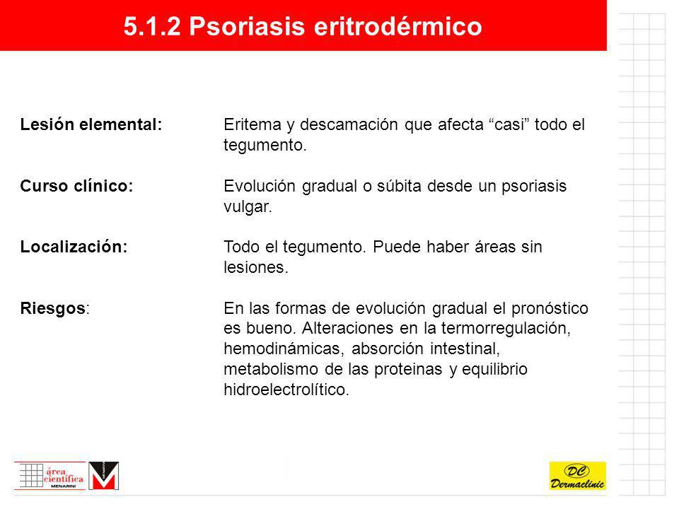 5.1.2 Psoriasis eritrodérmico