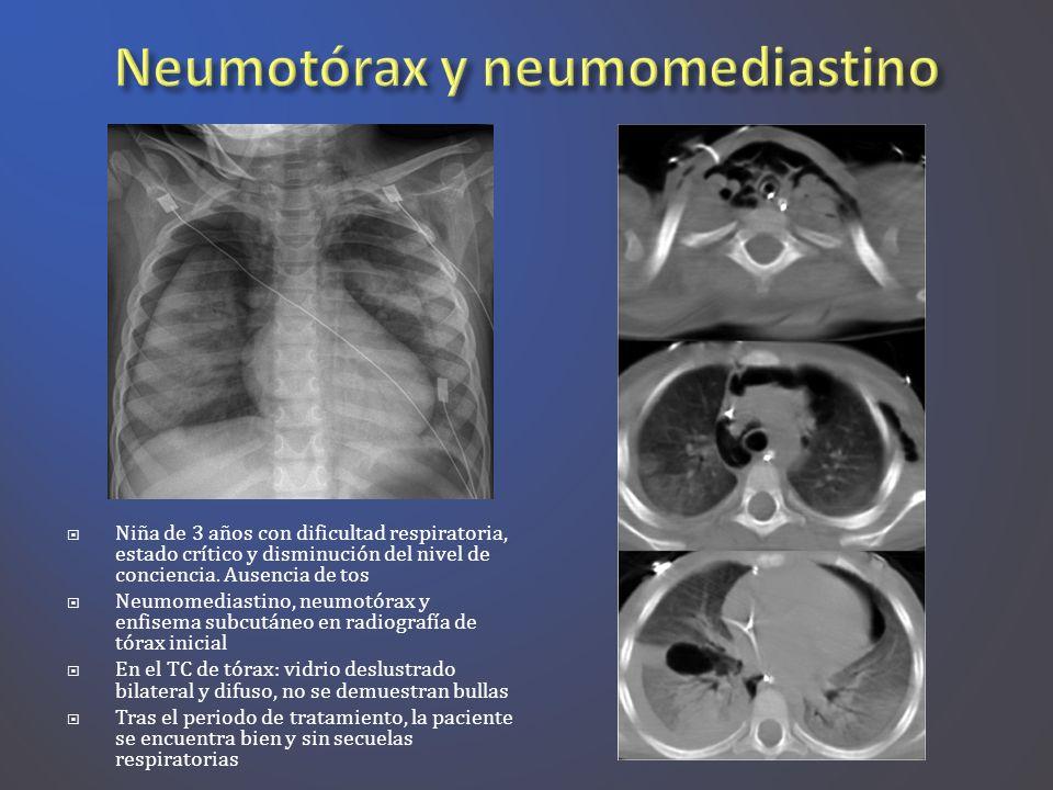 Neumotórax y neumomediastino