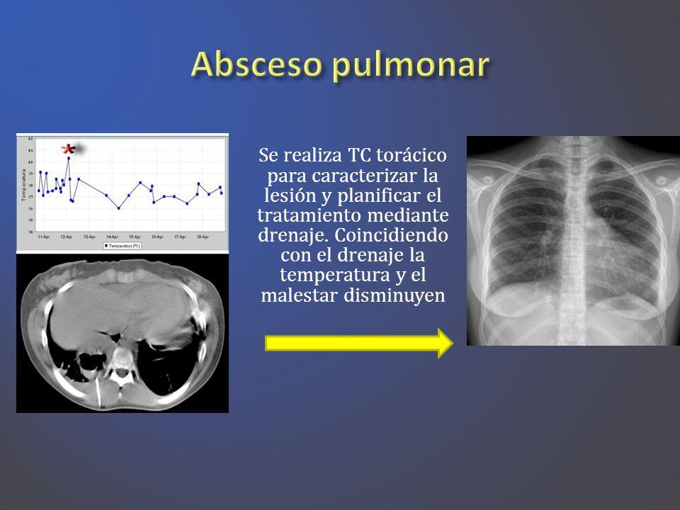 Absceso pulmonar