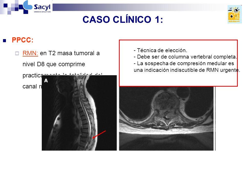 CASO CLÍNICO 1: PPCC: RMN: en T2 masa tumoral a nivel D8 que comprime practicamente la totalidad del canal medular.