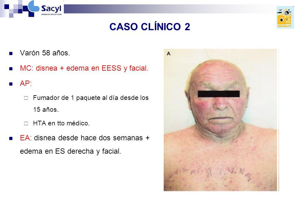 CASO CLÍNICO 2 Varón 58 años. MC: disnea + edema en EESS y facial. AP: