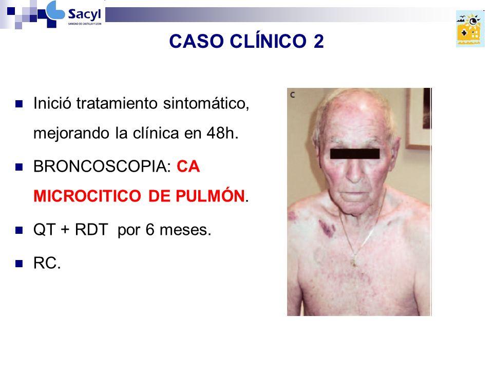 CASO CLÍNICO 2 Inició tratamiento sintomático, mejorando la clínica en 48h. BRONCOSCOPIA: CA MICROCITICO DE PULMÓN.