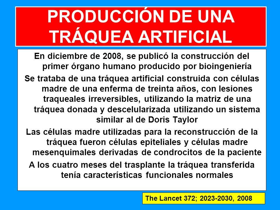 PRODUCCIÓN DE UNA TRÁQUEA ARTIFICIAL