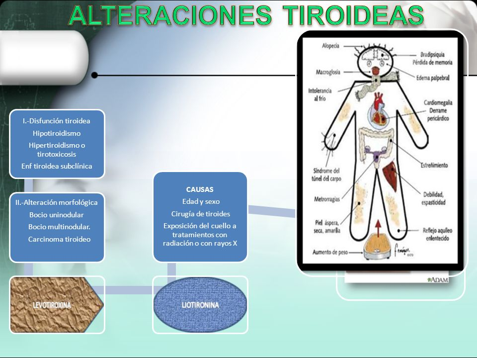 ALTERACIONES TIROIDEAS