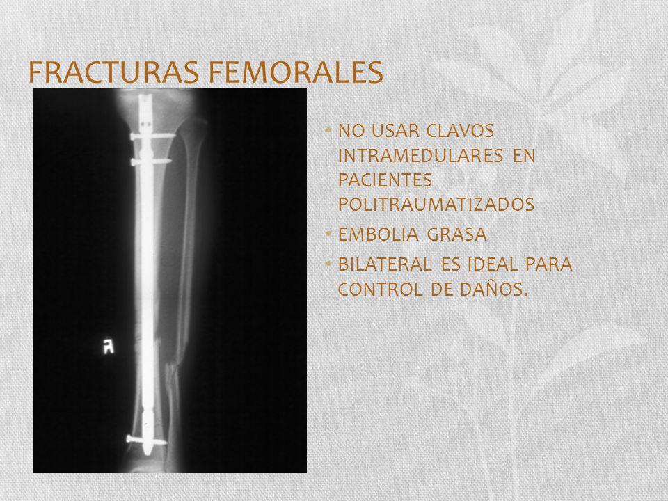 FRACTURAS FEMORALES NO USAR CLAVOS INTRAMEDULARES EN PACIENTES POLITRAUMATIZADOS. EMBOLIA GRASA.