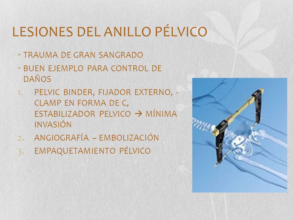 LESIONES DEL ANILLO PÉLVICO