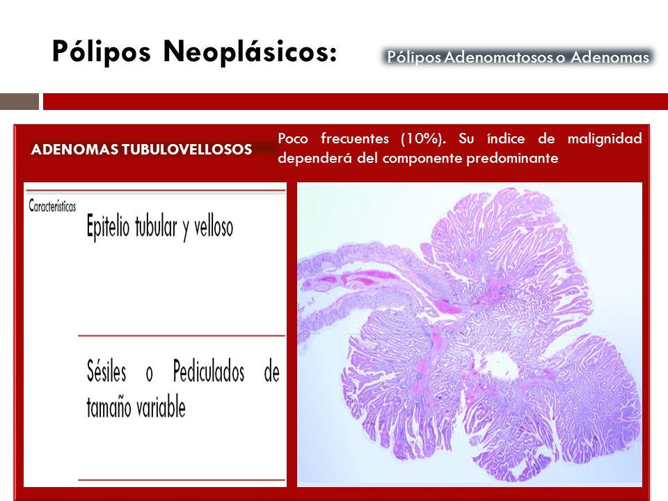 Pólipos Adenomatosos o Adenomas