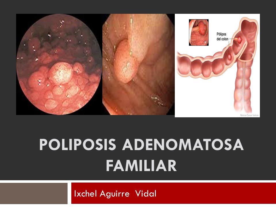 POLIPOSIS ADENOMATOSA FAMILIAR
