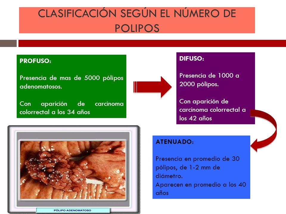 CLASIFICACIÓN SEGÚN EL NÚMERO DE POLIPOS