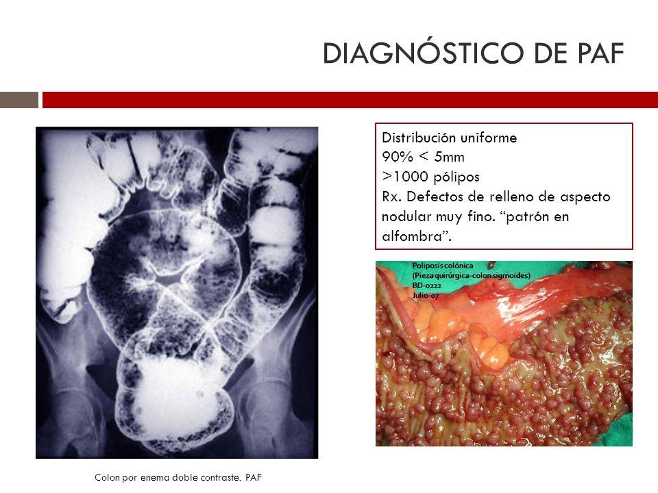 DIAGNÓSTICO DE PAF Distribución uniforme 90% < 5mm >1000 pólipos