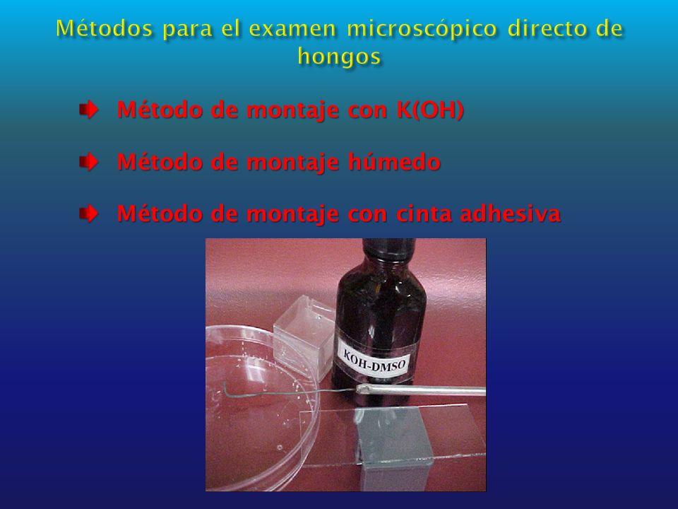Métodos para el examen microscópico directo de hongos