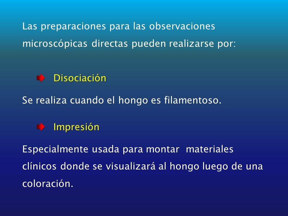 Las preparaciones para las observaciones microscópicas directas pueden realizarse por: