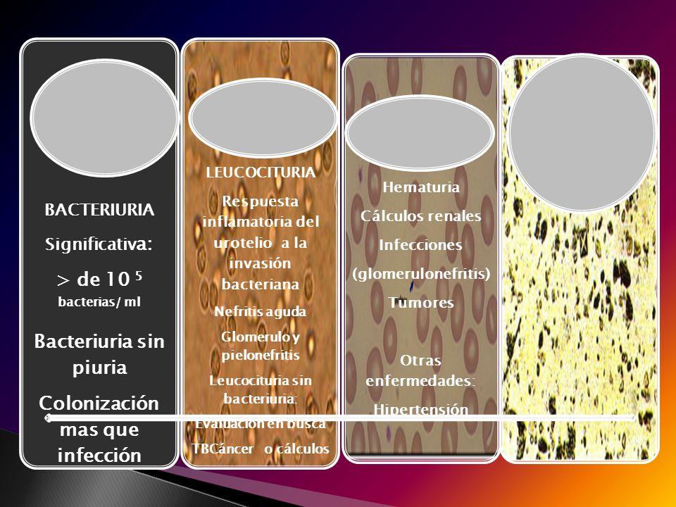 Bacteriuria > de 10 5 bacterias/ ml Bacteriuria sin piuria