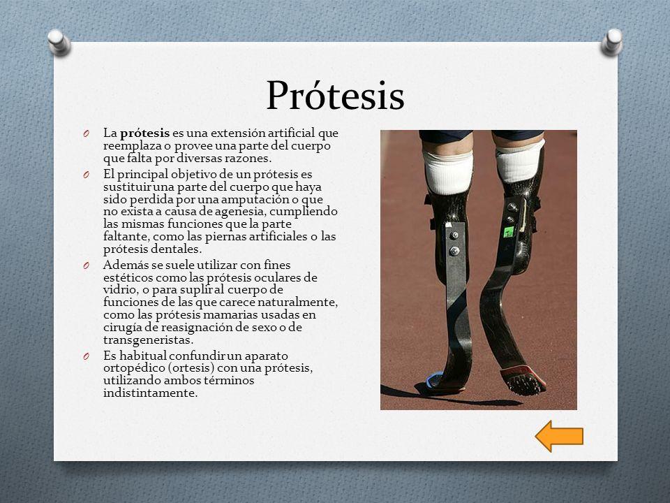 Prótesis La prótesis es una extensión artificial que reemplaza o provee una parte del cuerpo que falta por diversas razones.