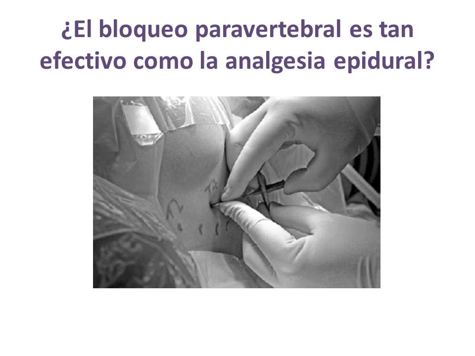 ¿El bloqueo paravertebral es tan efectivo como la analgesia epidural