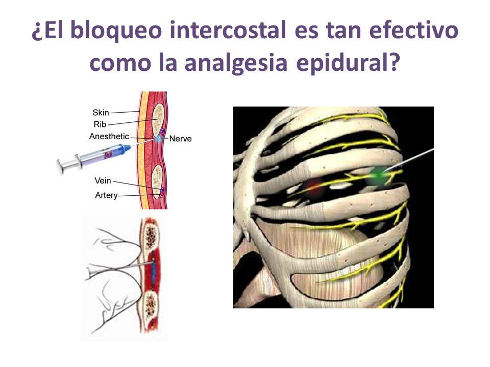 ¿El bloqueo intercostal es tan efectivo como la analgesia epidural