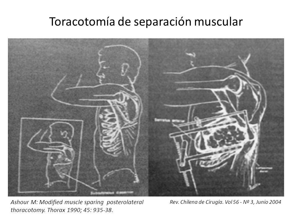 Toracotomía de separación muscular