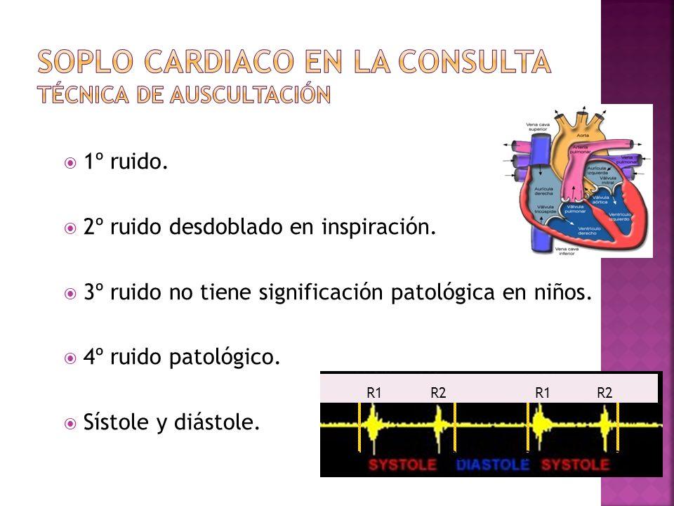 Soplo cardiaco en la consulta Técnica de auscultación