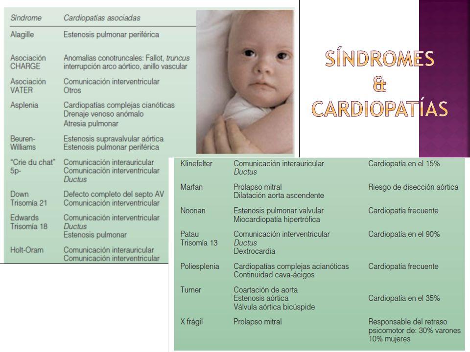 Síndromes & Cardiopatías