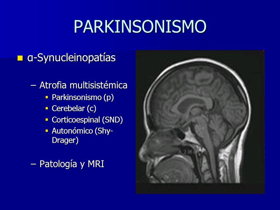 PARKINSONISMO α-Synucleinopatías Atrofia multisistémica