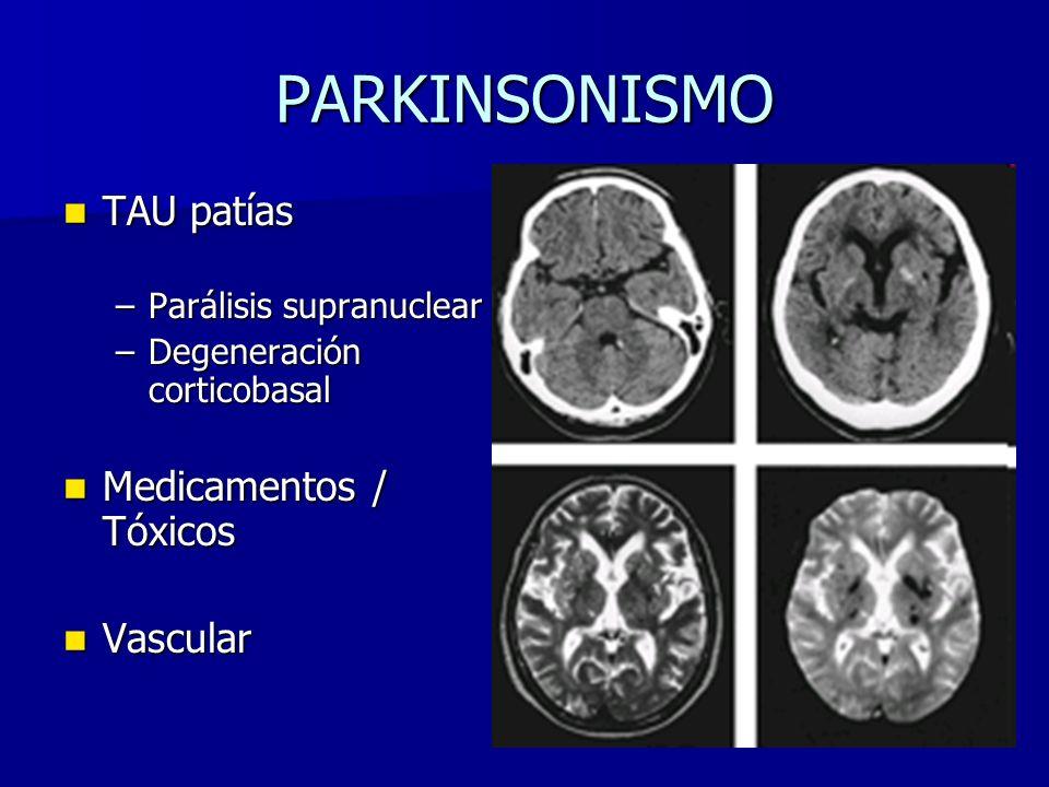 PARKINSONISMO TAU patías Medicamentos / Tóxicos Vascular