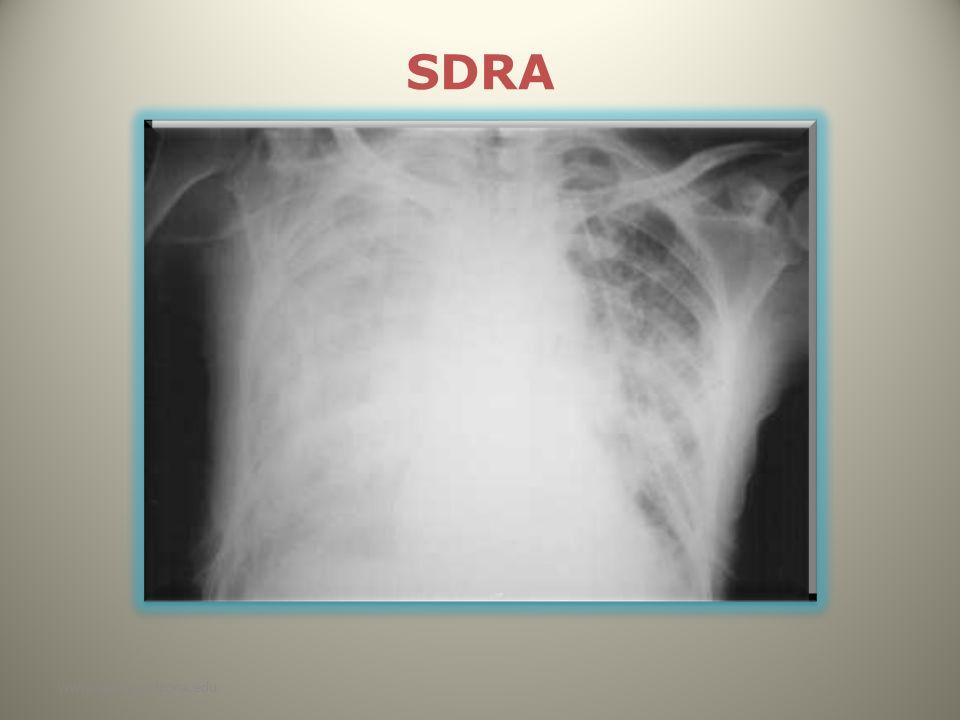 SDRA www.reeme.arizona.edu