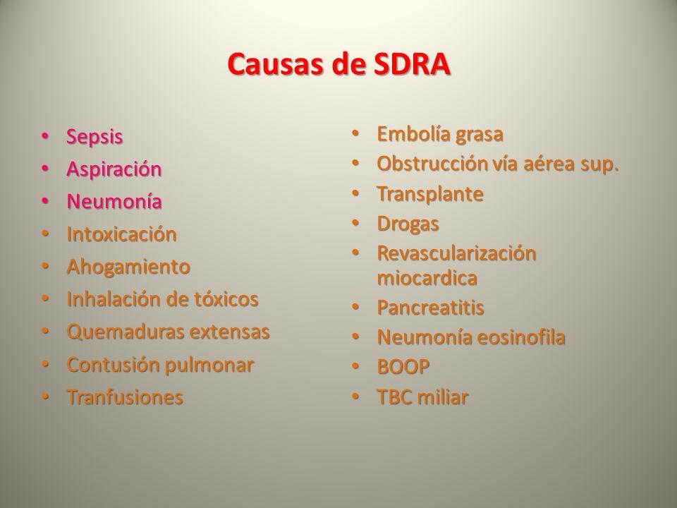 Causas de SDRA Sepsis Aspiración Neumonía Intoxicación Ahogamiento
