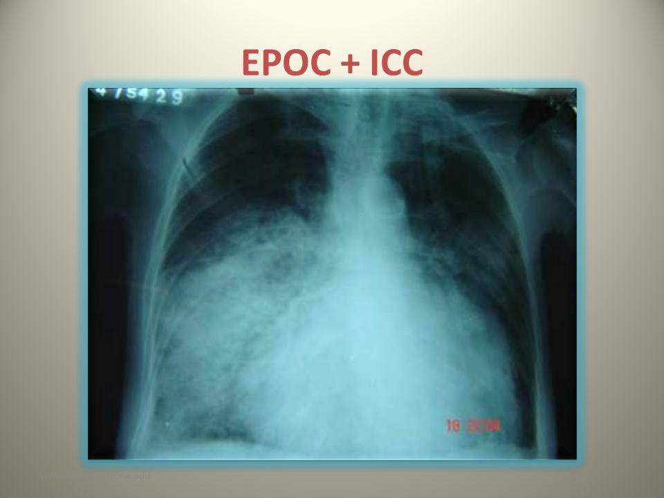 EPOC + ICC www.reeme.arizona.edu