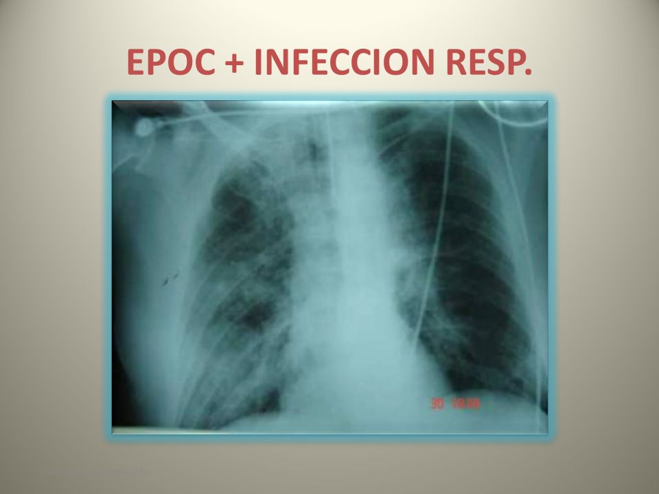 EPOC + INFECCION RESP. www.reeme.arizona.edu