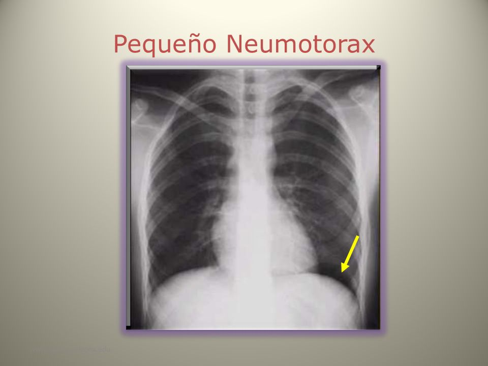Pequeño Neumotorax www.reeme.arizona.edu