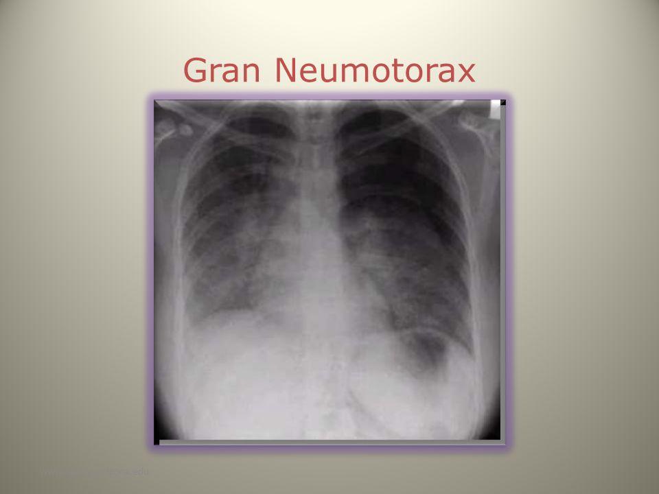 Gran Neumotorax www.reeme.arizona.edu