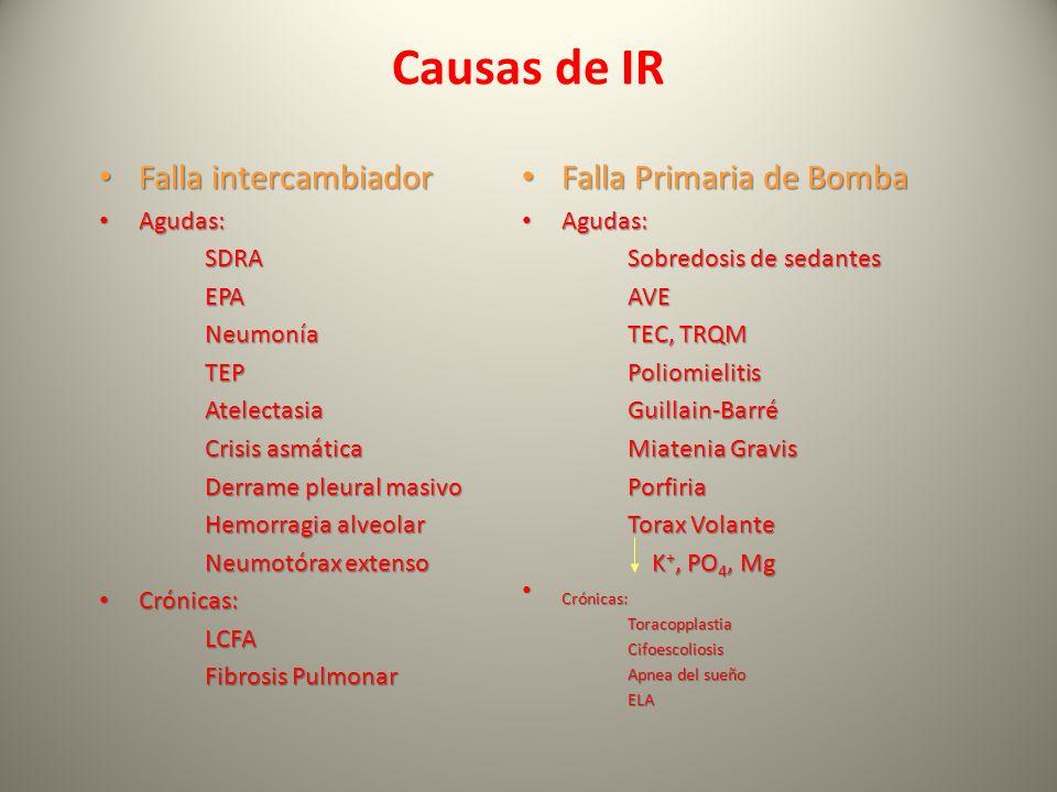 Causas de IR Falla intercambiador Falla Primaria de Bomba Agudas: SDRA