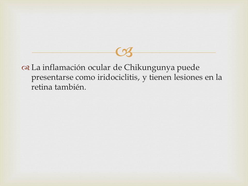 La inflamación ocular de Chikungunya puede presentarse como iridociclitis, y tienen lesiones en la retina también.