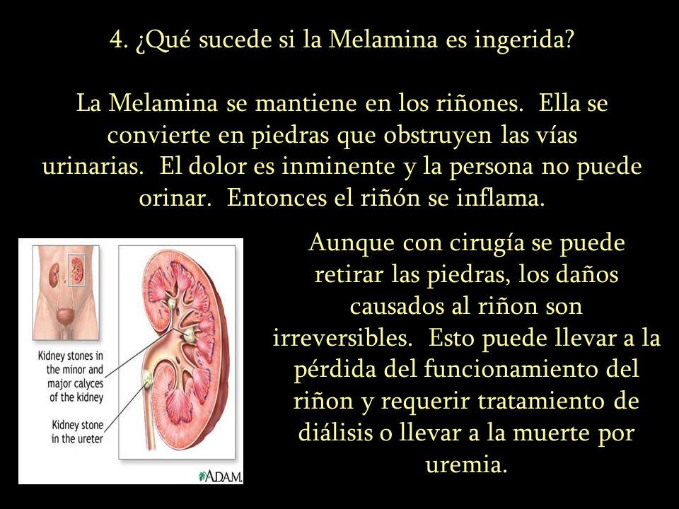 4. ¿Qué sucede si la Melamina es ingerida