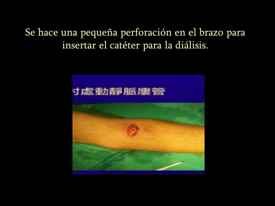 Se hace una pequeña perforación en el brazo para insertar el catéter para la diálisis.