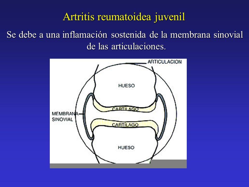 Se debe a una inflamación sostenida de la membrana sinovial