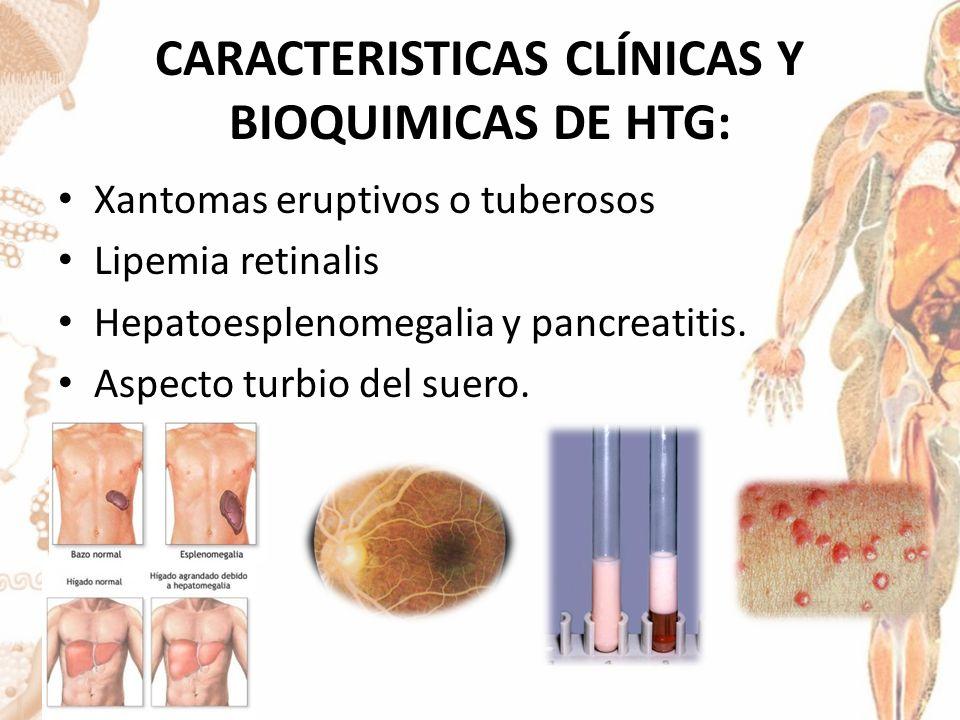 CARACTERISTICAS CLÍNICAS Y BIOQUIMICAS DE HTG: