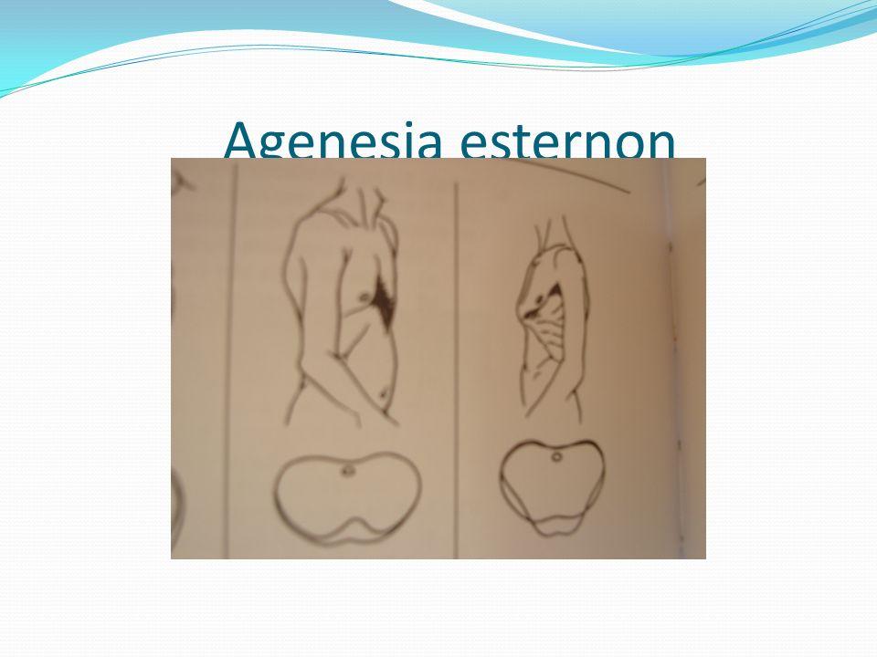 Agenesia esternon
