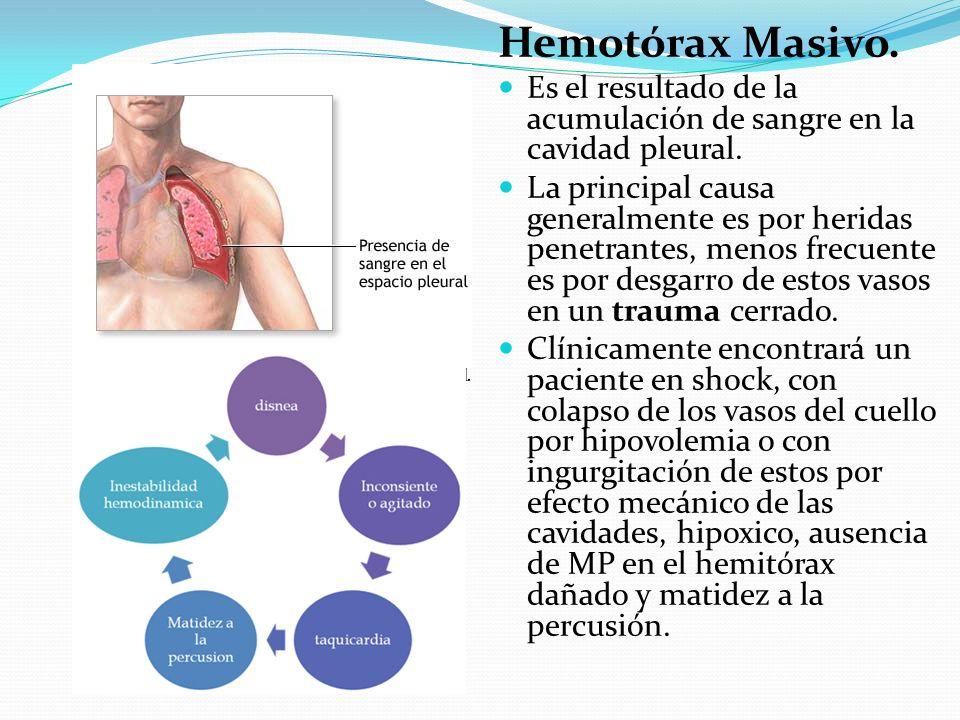 Hemotórax Masivo. Es el resultado de la acumulación de sangre en la cavidad pleural.