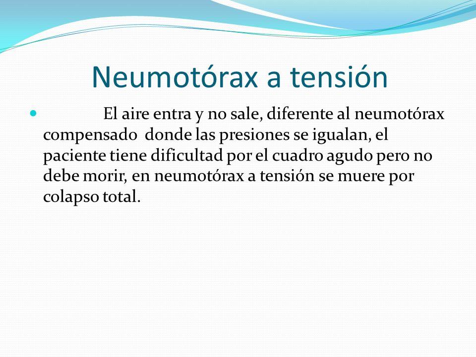 Neumotórax a tensión