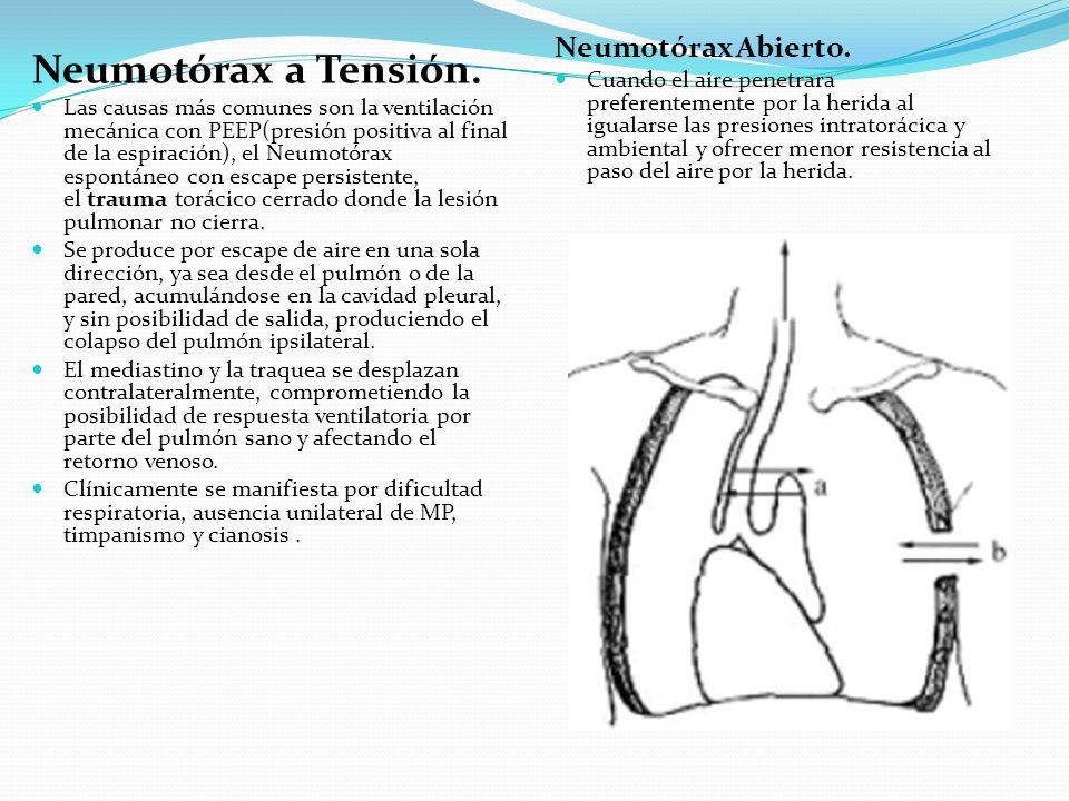 Neumotórax a Tensión. Neumotórax Abierto.