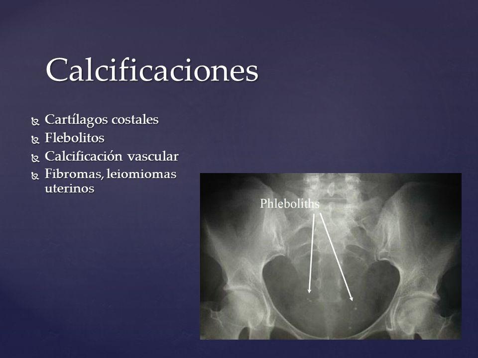 Calcificaciones Cartílagos costales Flebolitos Calcificación vascular