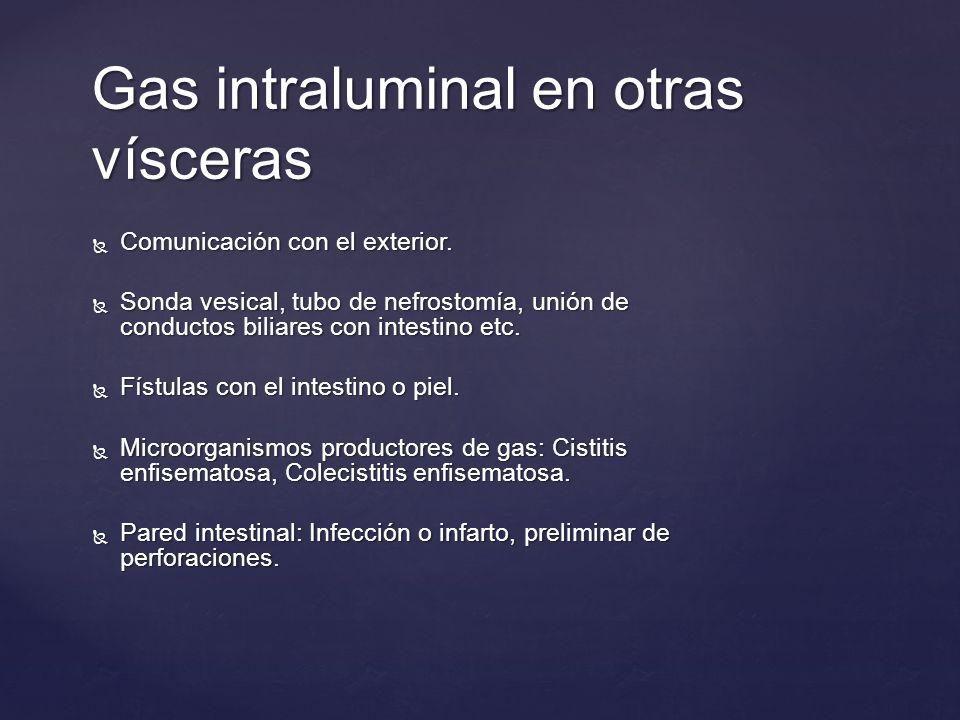 Gas intraluminal en otras vísceras