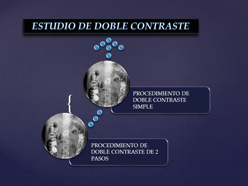 ESTUDIO DE DOBLE CONTRASTE