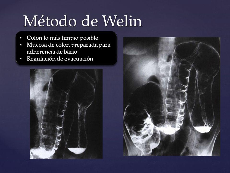 Método de Welin Colon lo más limpio posible