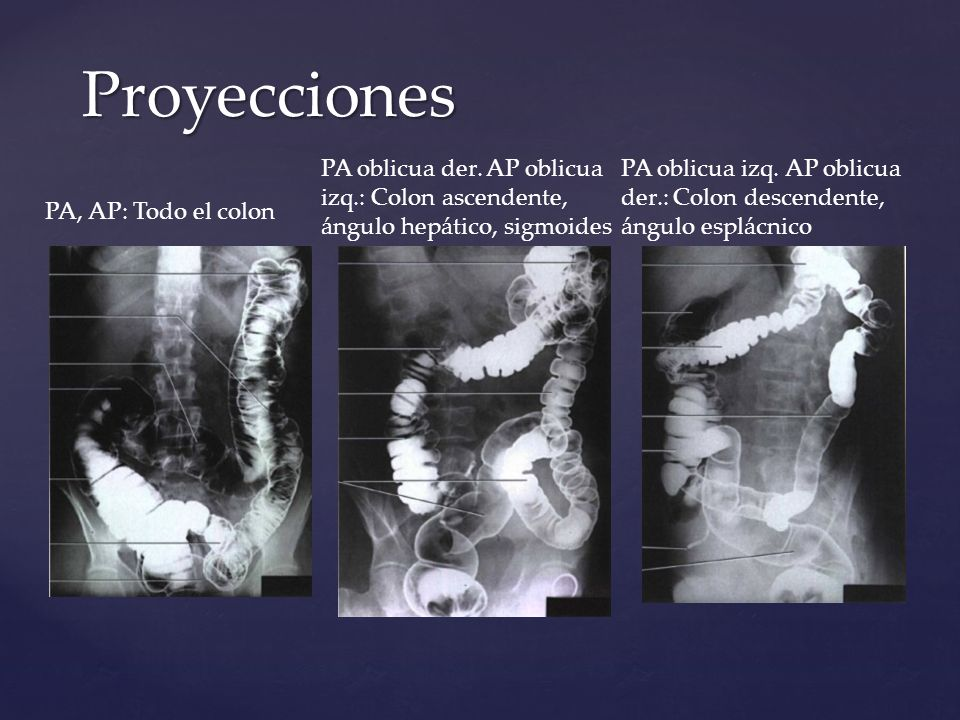 Proyecciones PA oblicua der. AP oblicua izq.: Colon ascendente, ángulo hepático, sigmoides.