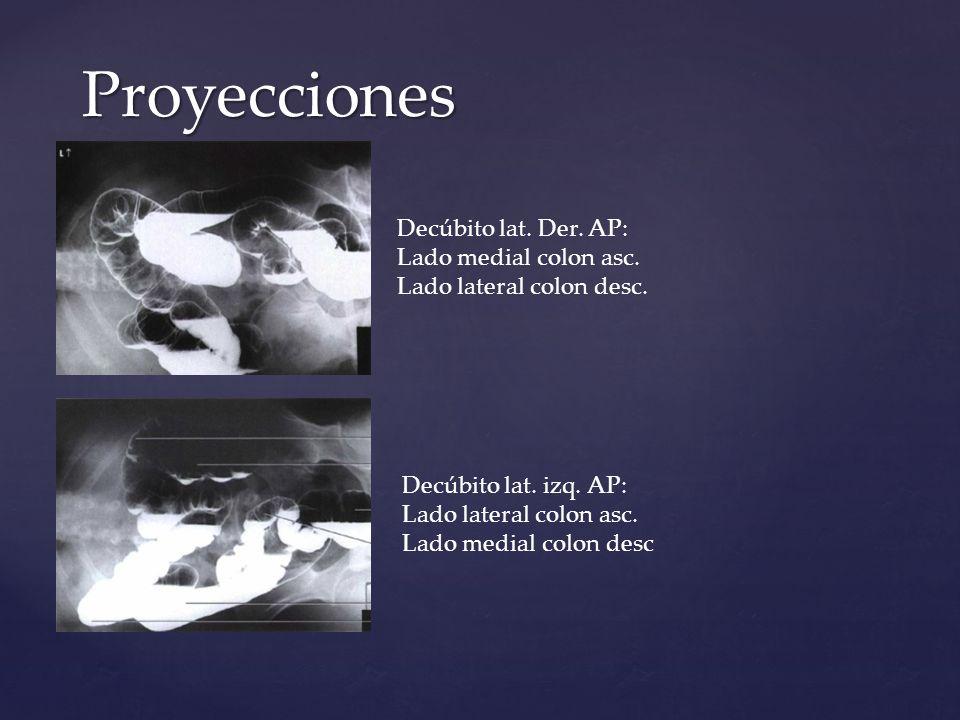 Proyecciones Decúbito lat. Der. AP: Lado medial colon asc. Lado lateral colon desc.