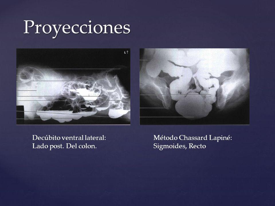 Proyecciones Decúbito ventral lateral: Lado post. Del colon.
