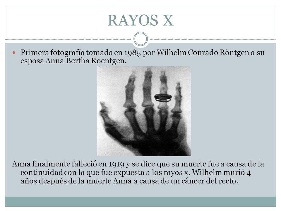 RAYOS X Primera fotografía tomada en 1985 por Wilhelm Conrado Röntgen a su esposa Anna Bertha Roentgen.